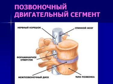 Схема лечения при остеохондрозе поясничного отдела